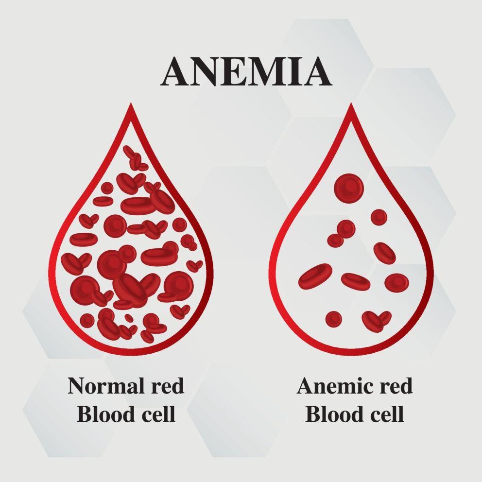 آزمایش کم خونی
